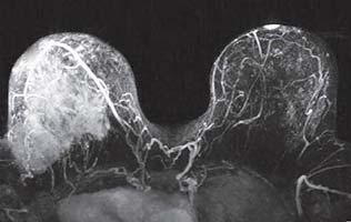 МРТ молочной железы с контрастом