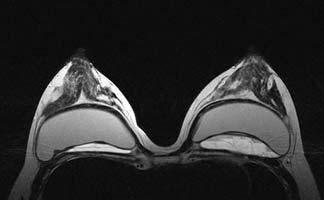 Что показывает МРТ молочных желез